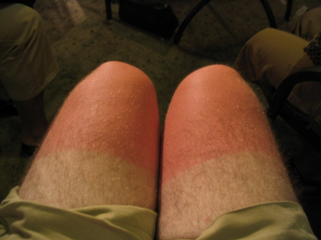 sunburned knees